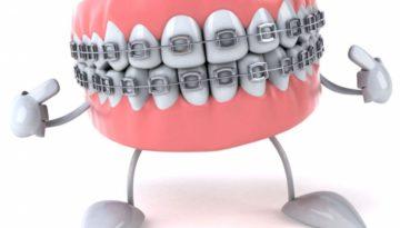 poza-oportunitate-tratamentului-cu-aparat-dentar-la-copii-1-10