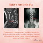 Hernia de disc tratata cu succes  cu ajutorul Terapiei manuale
